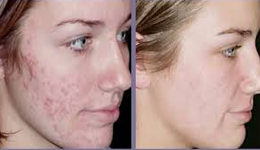 Acne Scar Removal In India Best Acne Scars Treatment Cost In Delhi