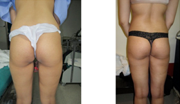 Brazilian Buttlift Surgery