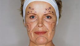Invassive Facial Rejuvenation