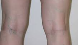 Sclerotherapy Treatment in Delhi