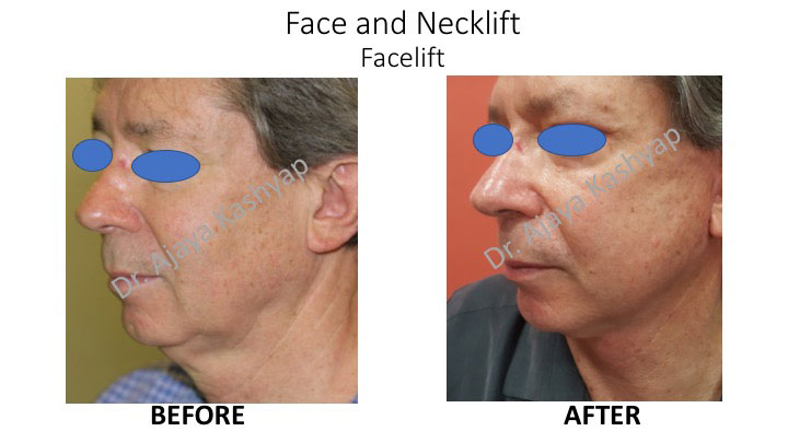 Neck lift surgery in Delhi