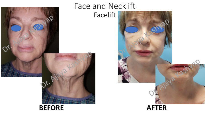 neck lift surgery in India