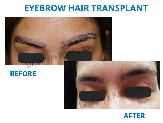 eyebrows transplant surgery in India