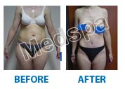 total body contouring