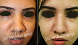 Best Rhinoplasty Surgery In Delhi Nose Surgery Cost In India